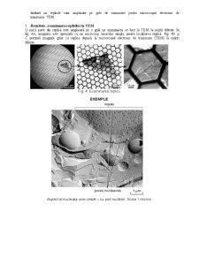 Criofracturarea - Pagina 4
