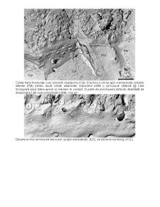 Criofracturarea - Pagina 5