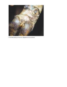 Toxiinfectia Stafilococica - Pagina 4