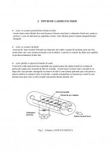 Instalatii laser cu excimer utilizate pentru corectarea unor afectiuni oculare - Pagina 5