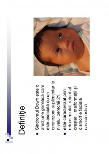 Sindromul Down - Pagina 2