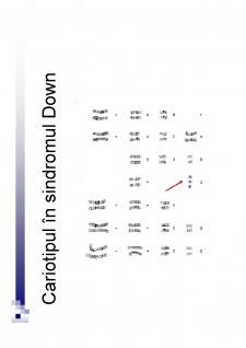 Sindromul Down - Pagina 4