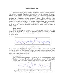 Electroencefalograma - Pagina 1