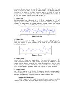 Electroencefalograma - Pagina 2