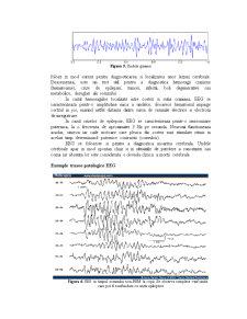Electroencefalograma - Pagina 3