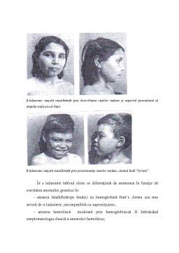 Licență - Sindromul Talasemic