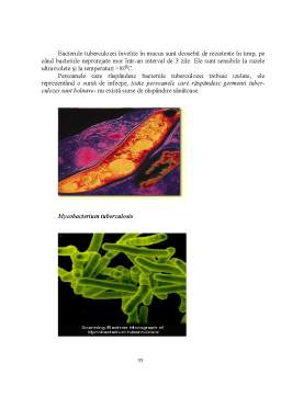 Proiect - Bacteriile