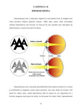 Proiect - Hipermetropia
