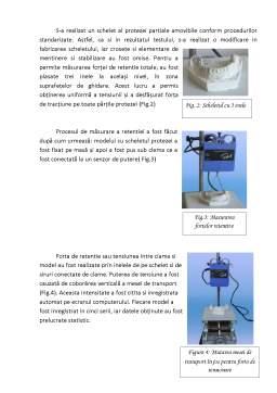 Proiect - Retenția suprafețelor plane de ghidaj în proteză parțial scheletată
